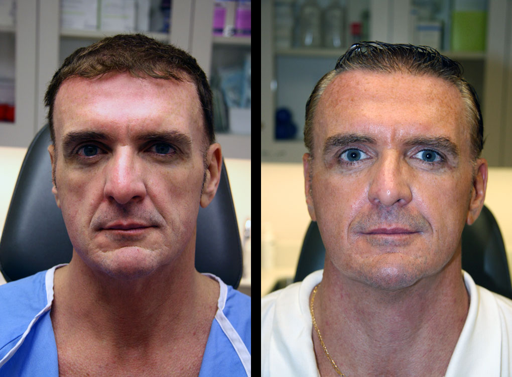 adult-stem-cell-therapy-before-after-john-s-enlarged