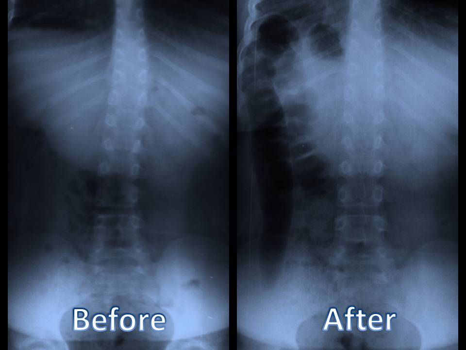 chiropratic_before_and_after_chiropractic