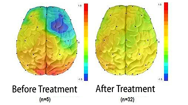 neurofeedback-beforeafter