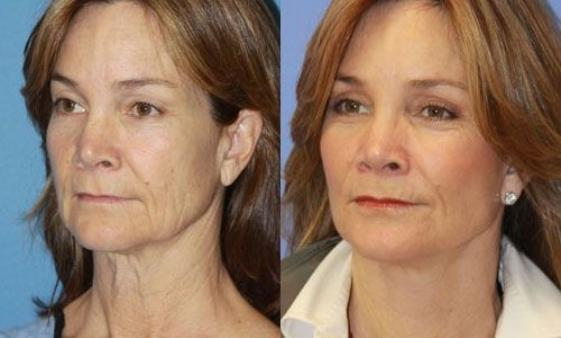 reflexology-face-exercises-before-after-facial-reflexology-treatments-561x338