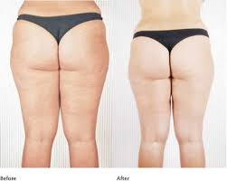 cryolipolysis-cryoslim-before