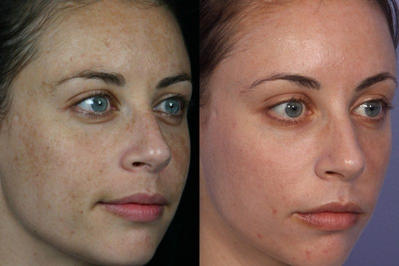 fractional-laser-skin-resurfacing-before