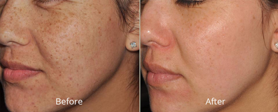 ipl-photofacial-before
