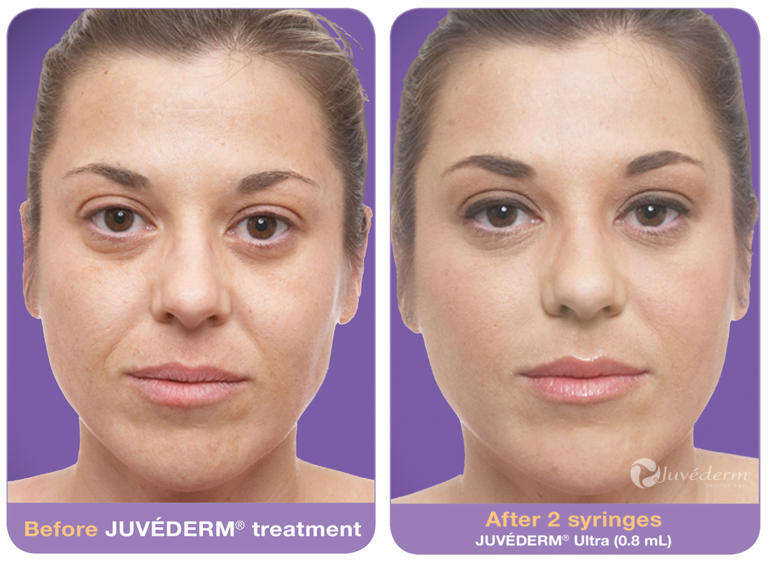 juvederm-ultra-before