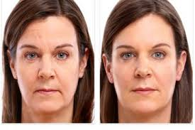 juvederm-voluma-before
