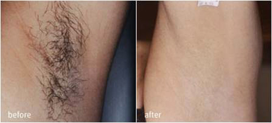 laser-and-ipl-hair-removal-before